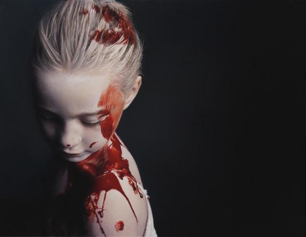 Gottfried Helnwein - Disasters of War 82